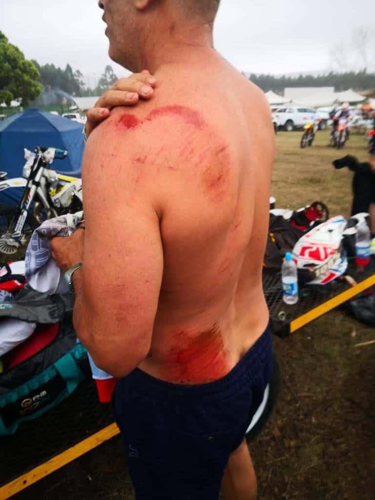 dirt bike injury and fisrt aid kit